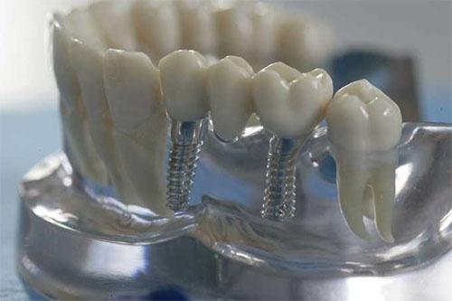 Макет: протезирование на имплантах