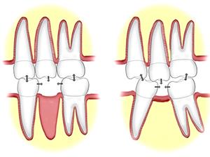 Смещение зубов при отсутствии протезирования