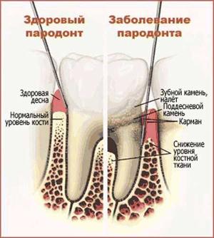 zub-kamen