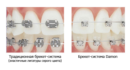 zuby_dajmon