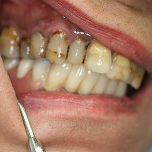 Состояние полости рта у курильщика