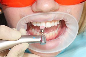 Профессиональная гигиена (чистка)