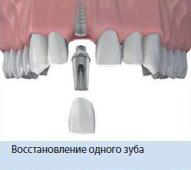 Восстановление одного зуба